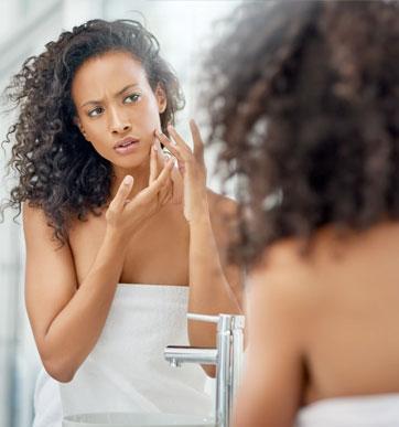 cystic-acne-hack